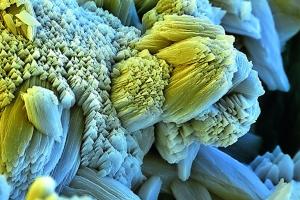 Kalk als Bestandteil von elektronenmikroskopisch vergrößertem Kesselstein.